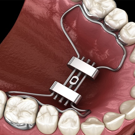 Animated smile with palatal expander in place