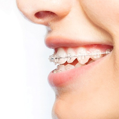 A side profile that shows a person wearing ceramic braces