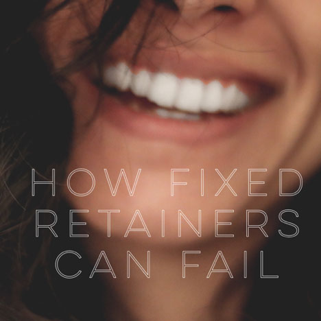 How Fixed Retainers Can Fail