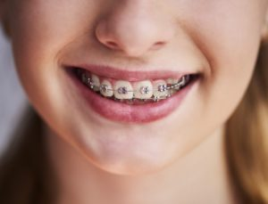 Closeup of smile with braces for children