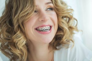 Woman with blond hair wondering about braces treatment time